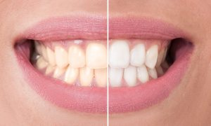 Teeth Whitening - Minnetonka, Hopkins, Eden Prairie, St Louis Park - MN