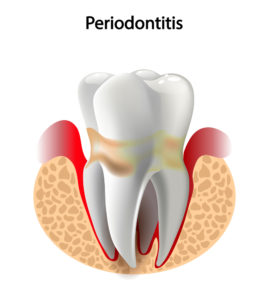 Treatments for Advanced Periodontal Disease