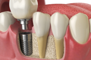 Common Dental Implant Problems & How to Treat Them
