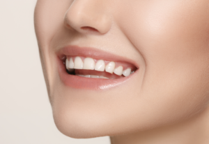 Cosmetic Teeth Whitening